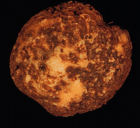 Sunken or raised corky spots on potato tubers are characteristic of potato scab